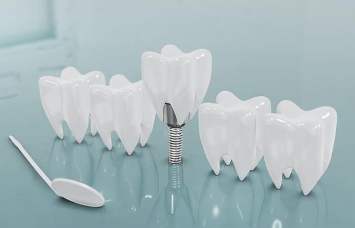 Implantología y otros tratamientos
