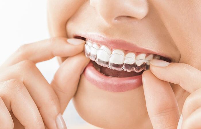 Estética dental en López Casero
